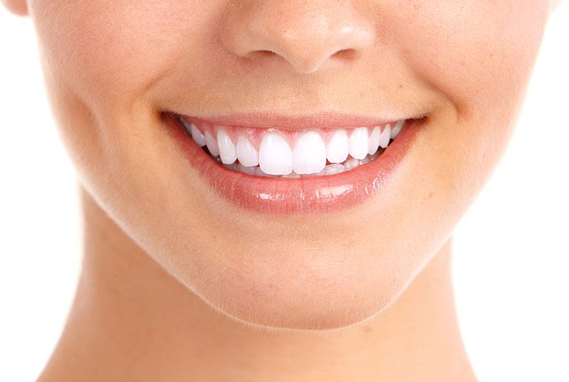 Clareamento Dental Como Funciona