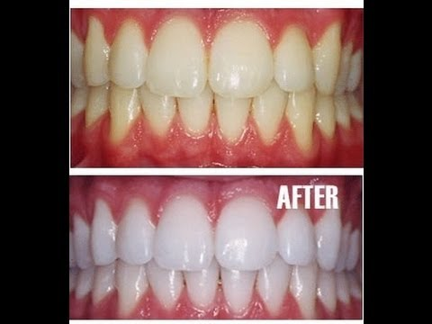 Clareamento Dental Natural