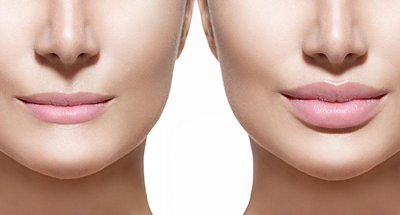Antes E Depois Preenchimento Labial
