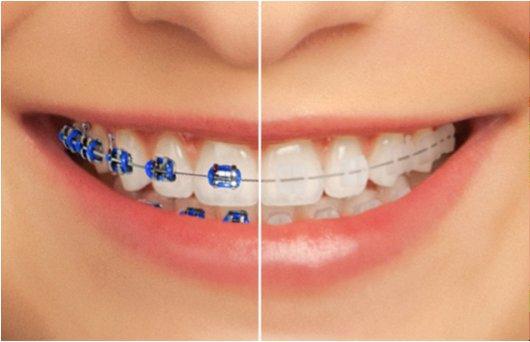 Aparelho Dentário Estético