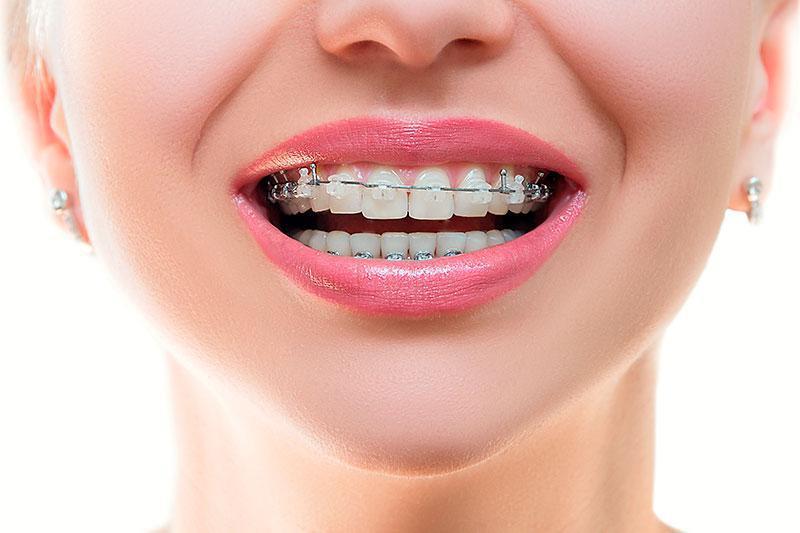 Aparelhos Ortodonticos Precos