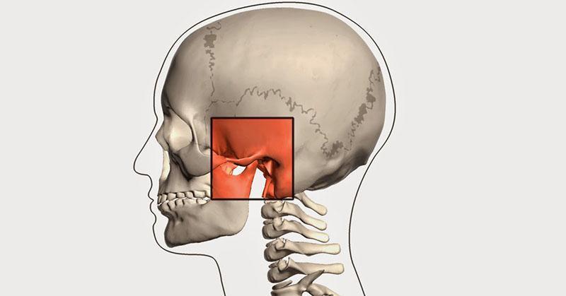 ATM Articulação Temporomandibular Tratamento