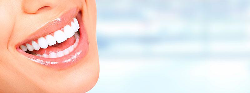 Capa para Dentes Preço