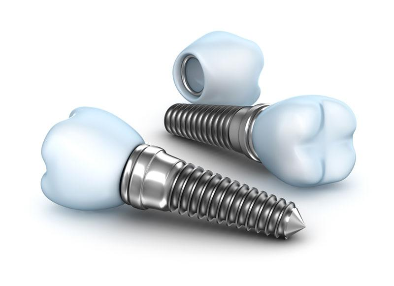 Carga Imediata Em Implantes