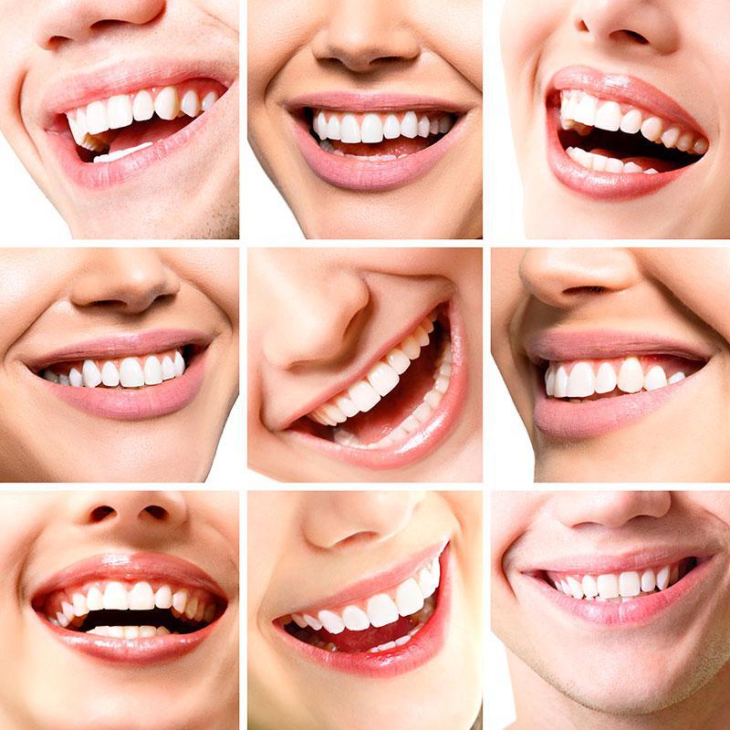 Cirurgia Buco Maxilo Facial Antes E Depois