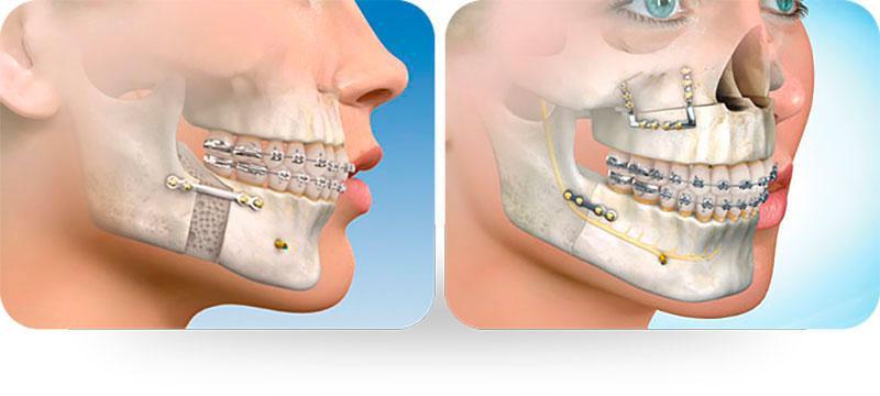 Cirurgia Buco Maxilo Facial Preço