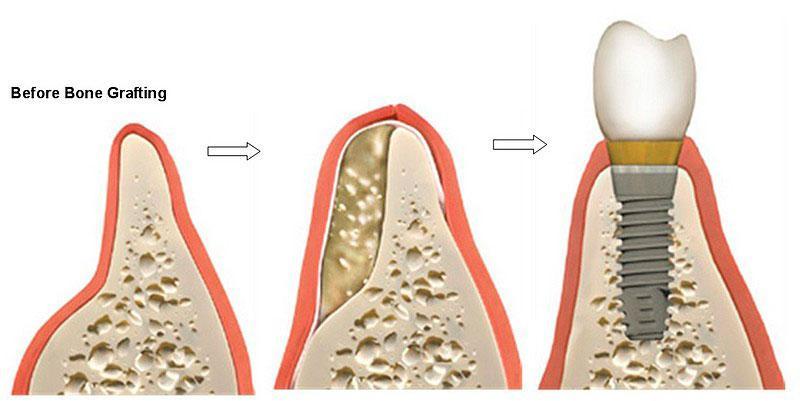 Cirurgia de Enxerto Ósseo Dentário