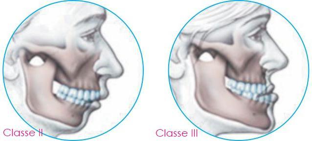 Cirurgia Ortognática Benefício Antecipado