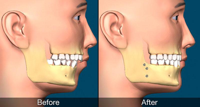 Cirurgia Ortognática Preço