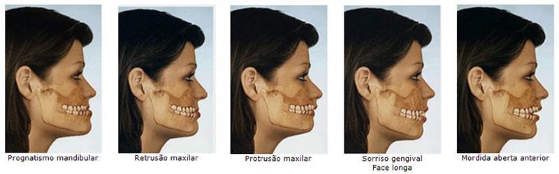 Cirurgia Ortognática Recuperação