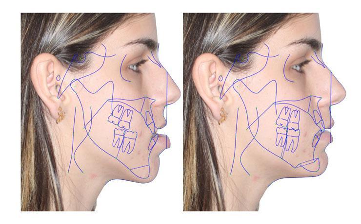 Cirurgia Ortognática Riscos
