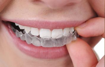 Clareamento Dental Caseiro Comprar
