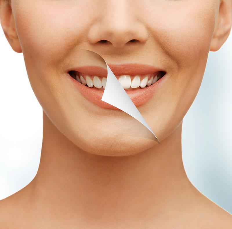 Clareamento Dental Caseiro Funciona