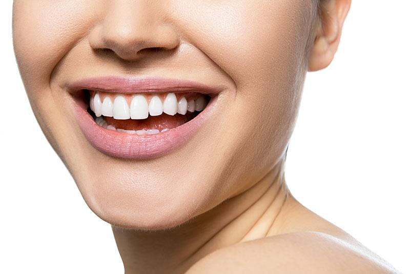 Clareamento Dental Caseiro Ou A Laser