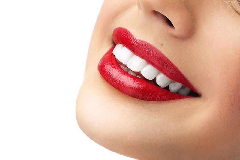 Clareamento Dental Caseiro Whiteness Perfect 22