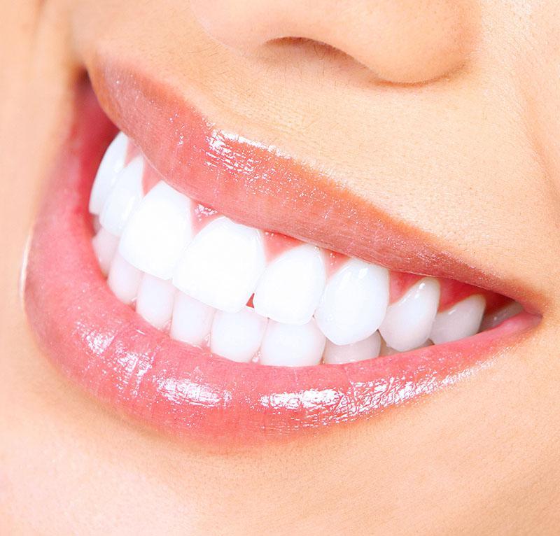 Clareamento Dental Feito Em Casa