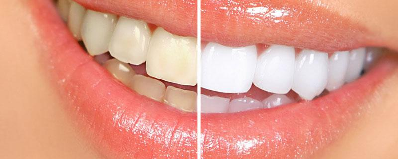 clareamento Dental o que Não Pode Comer