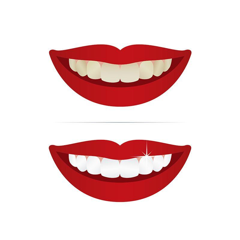 Clareamento Dental Resultado