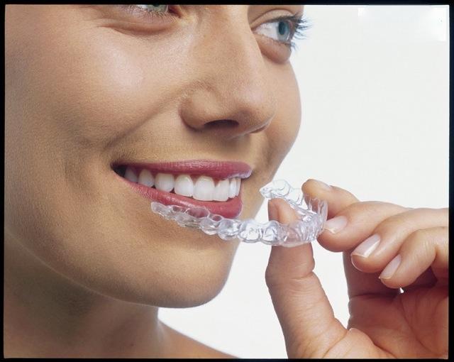 Clareamento Dental Tipos