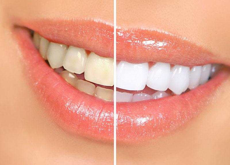 Clareamento Dos Dentes A Laser Preço