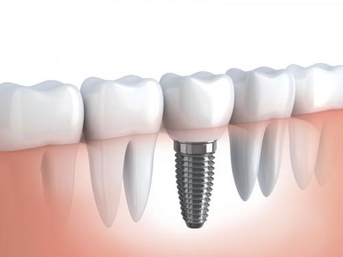 Clinica De Implante