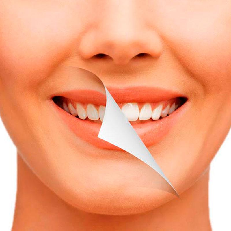 Como Branquear os Dentes