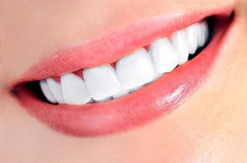 Como Clarear Dentes