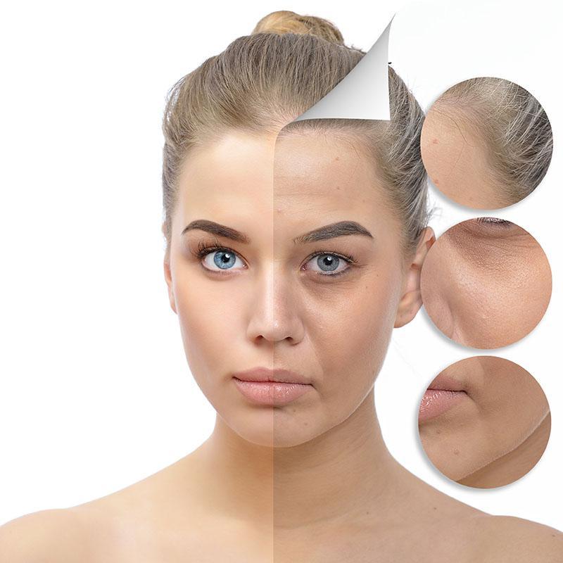 Como Evitar Marcas de Expressão no Rosto