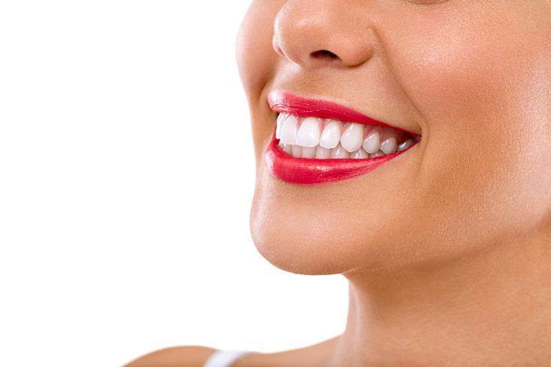 Como É Feito O Clareamento Dental