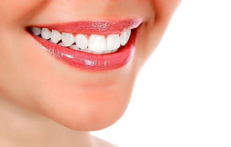 Dicas para Branquear os Dentes