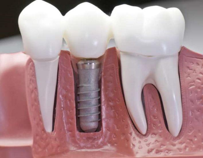 Enxerto Ósseo Dentário Recuperação