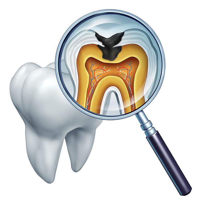 Especialista Em Tratamento De Canal Dentário