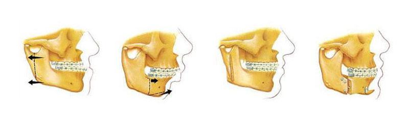 Fisioterapia Pós Cirurgia Ortognática