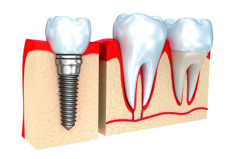 Implantar Dente
