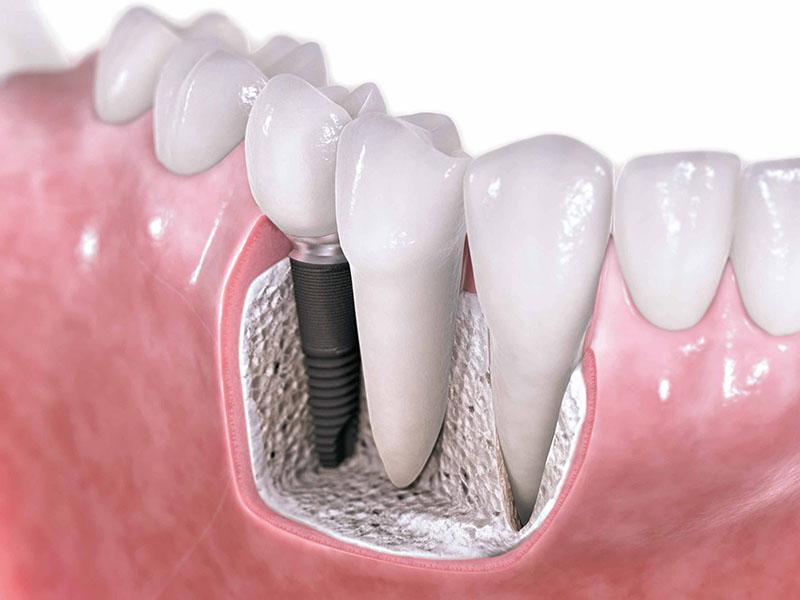 Implante Dentário Com Enxerto