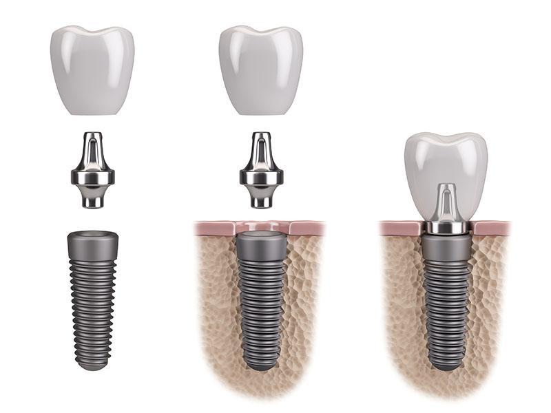 Implante Dentário Passo A Passo