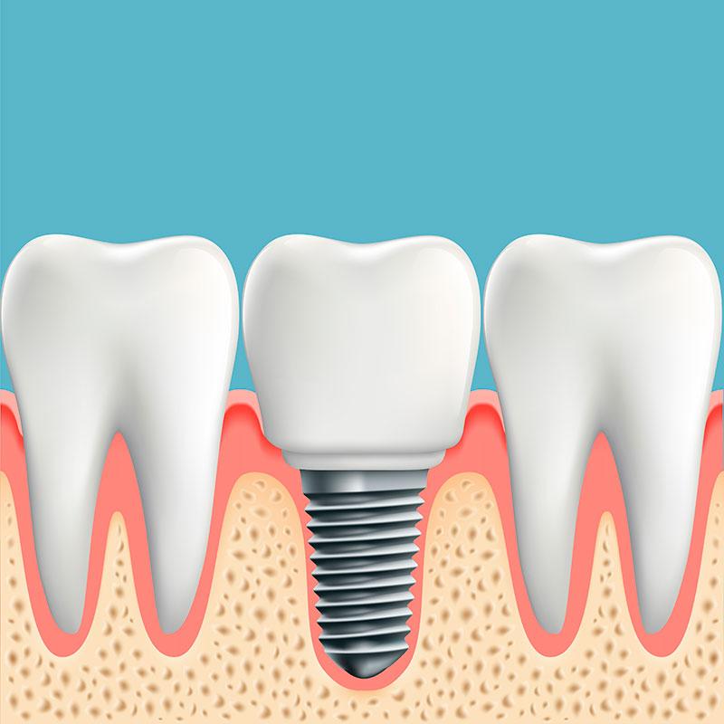 Implante Dentário Sem Corte