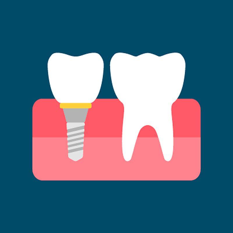 Implante Dentário Valor por Dente