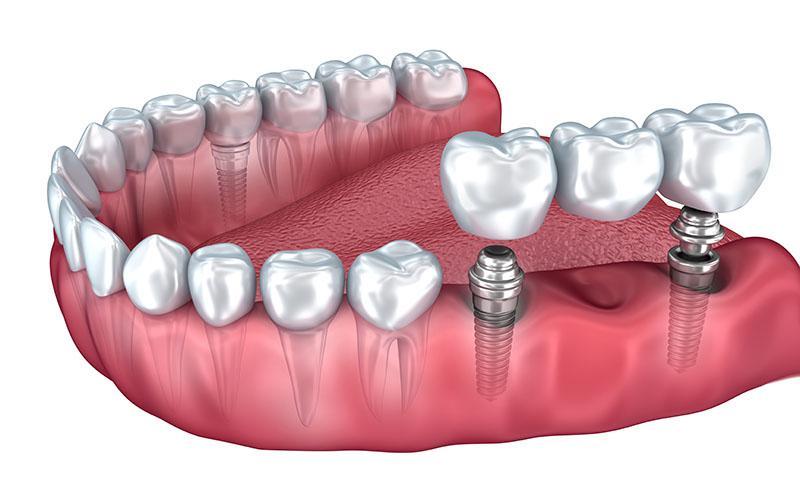Implante De Dente Da Frente