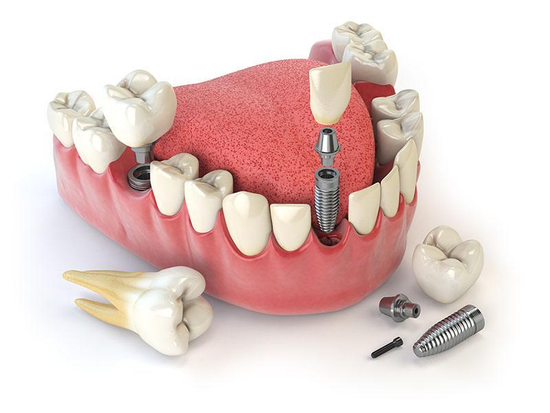 Implante Protocolo