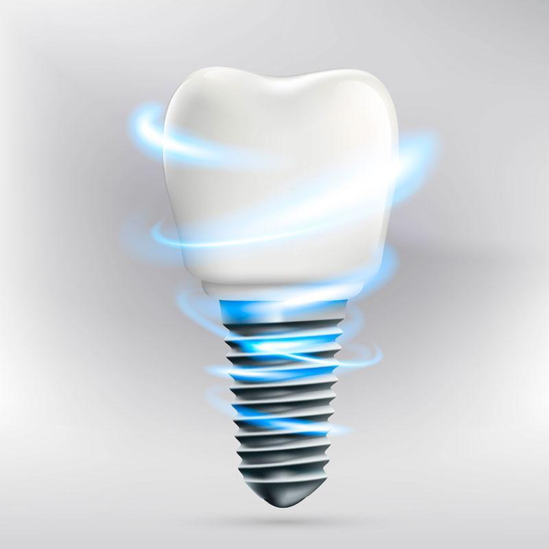 Implantes Dentes