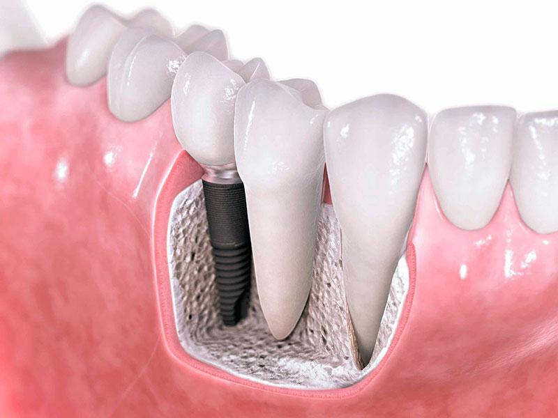 Implantes Odontológicos