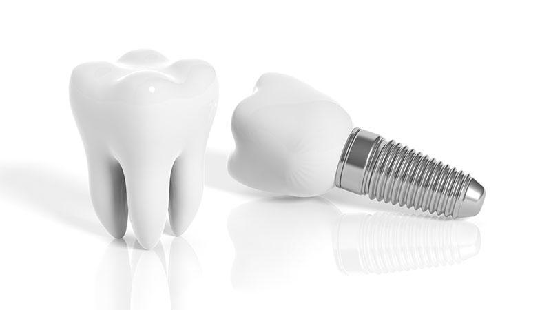 Laminas De Porcelana Nos Dentes Preço