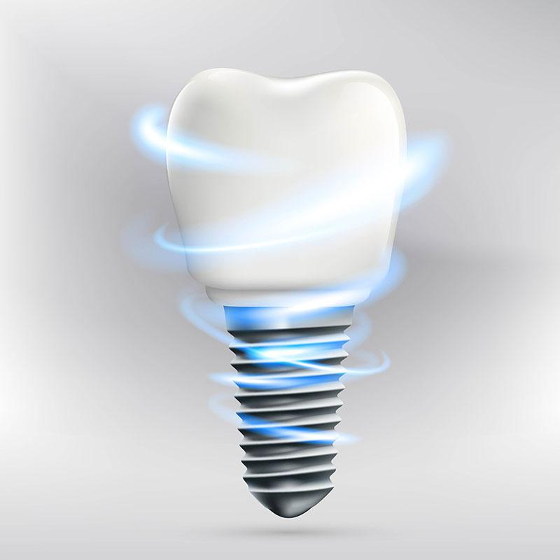 Melhor Implante Dentário