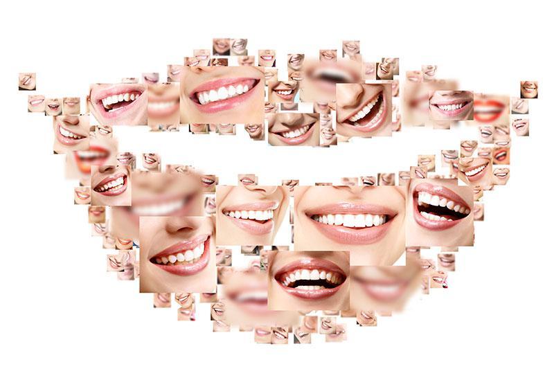 Melhor Tipo De Clareamento Dental