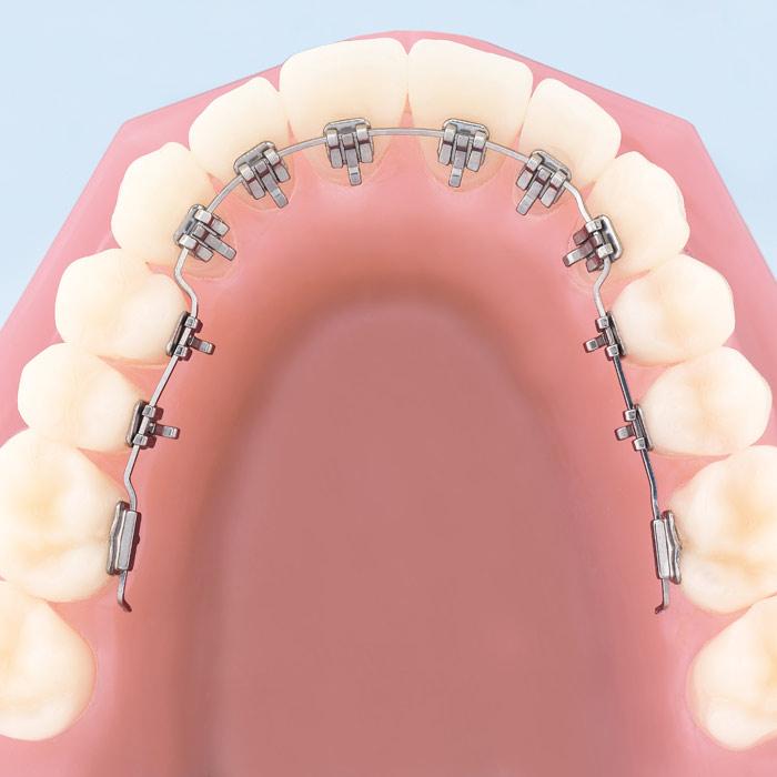 Ortodontia Invisível
