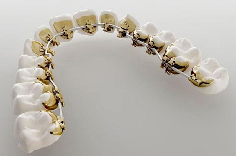 Ortodontia Lingual Preço