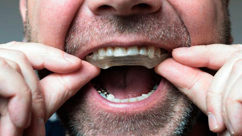 Placa Dental Bruxismo