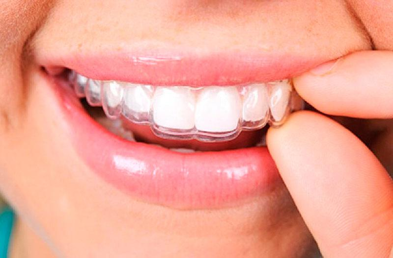 Placa Dentária para Bruxismo