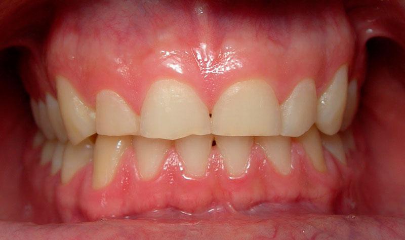 Placa Dentaria para Bruxismo Preço